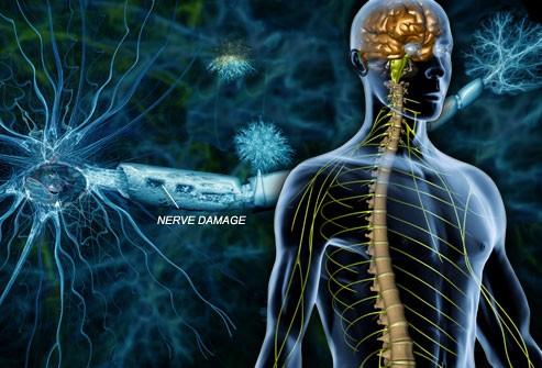 Image of nerve damage
