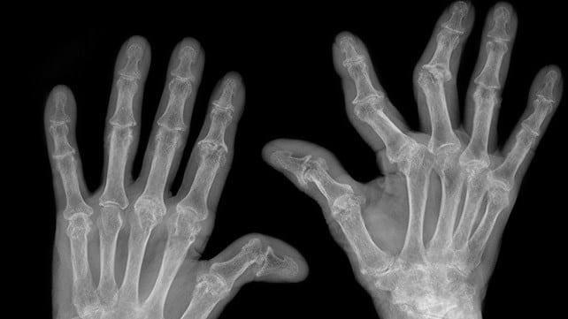 Image of Rheumatoid Arthritis in hands